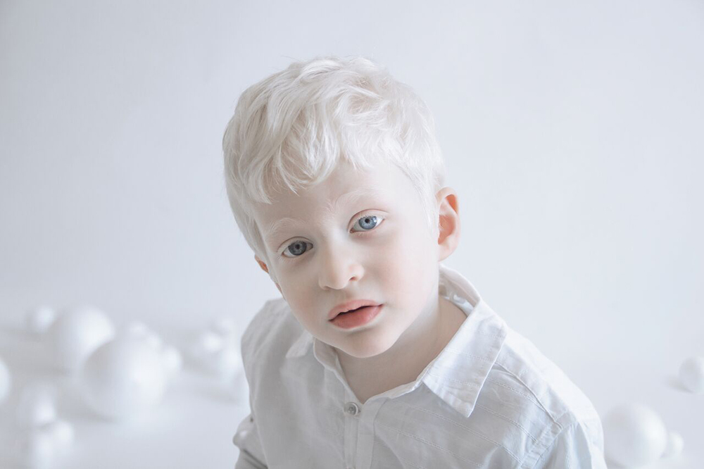 Yulia Taits: Porcelanska lepota ljudi sa albinizmom